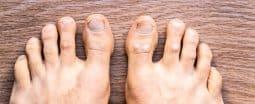 רגל הסובלת מפסוריאזיס