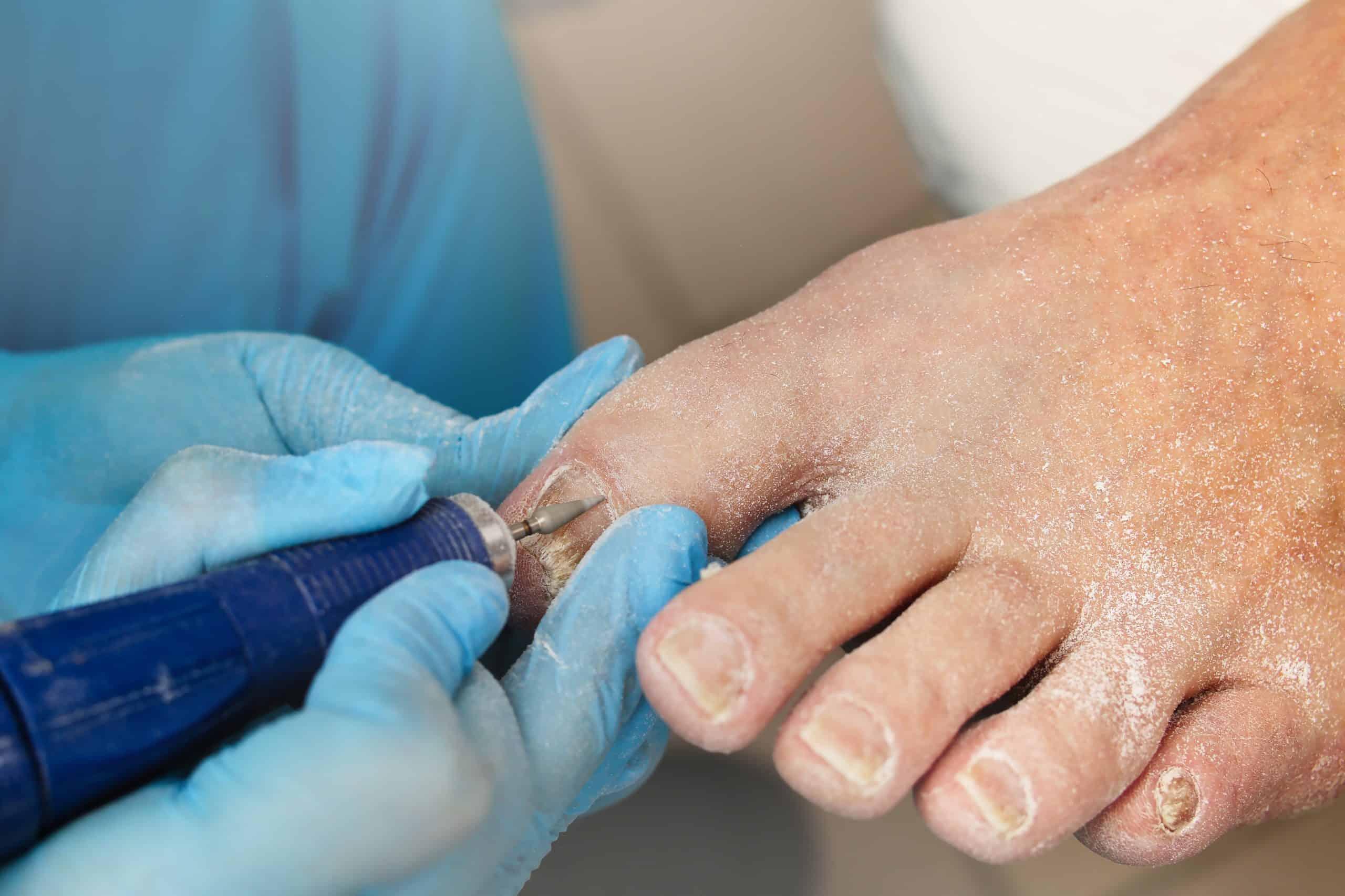 טיפול בכתמים לבנים בציפורניים